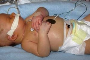Doctors-failure-to-respond-to-fetal-distress-results-in-6-Million-settlement.jpg
